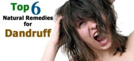 Dandruff Causes and Natural Treatment